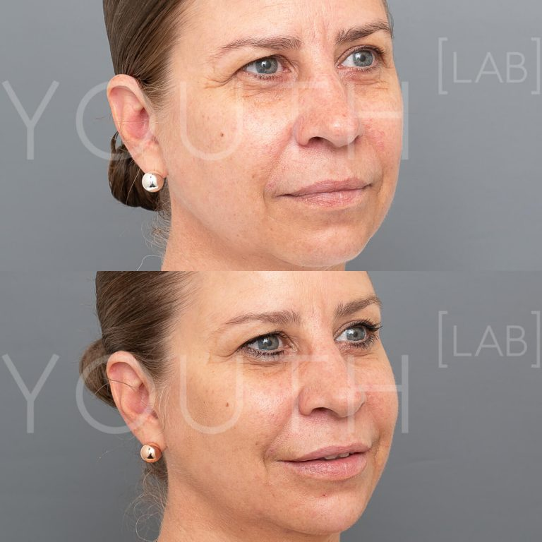 liquid face lift before and after 1
