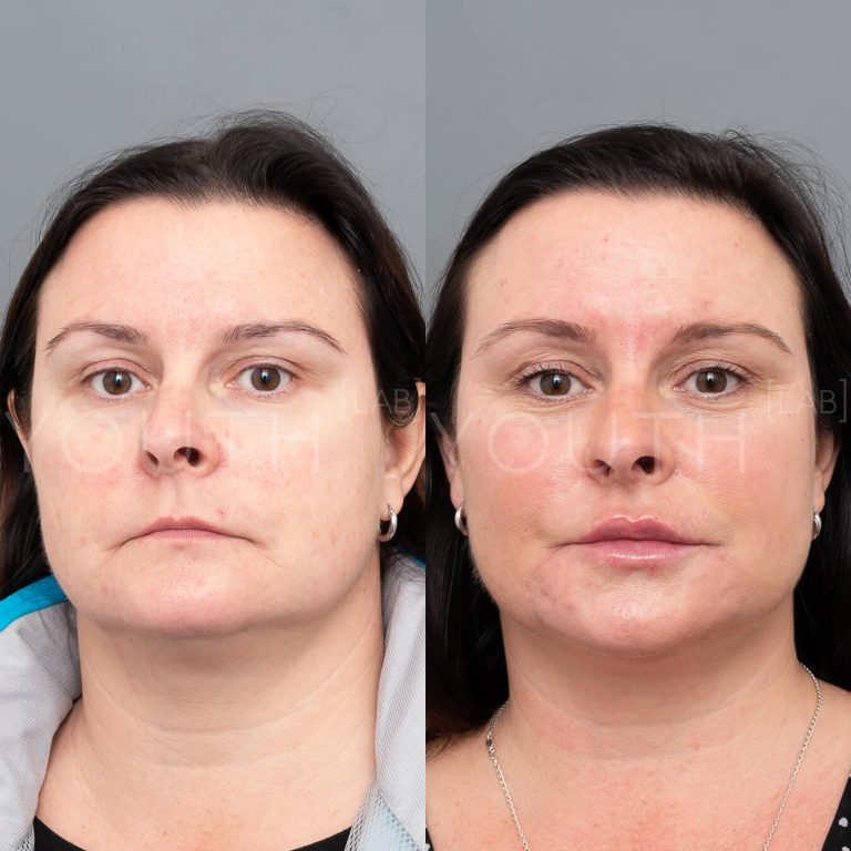 before and after with dermal fillers