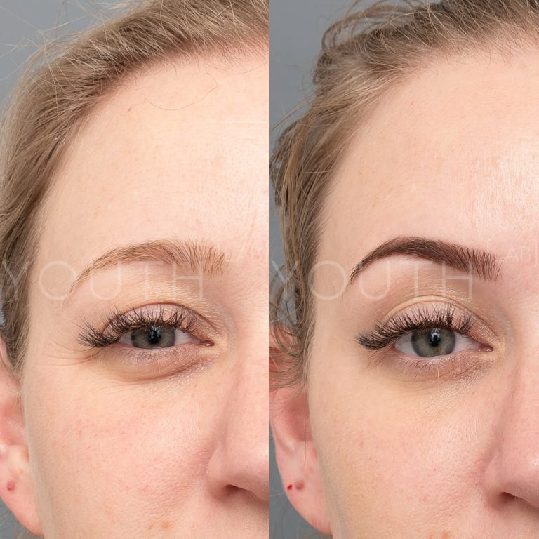 consented wrinkle relaxers before and after 3
