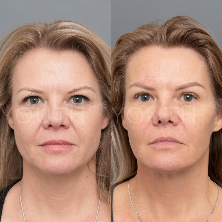 before and after with dermal fillers 2