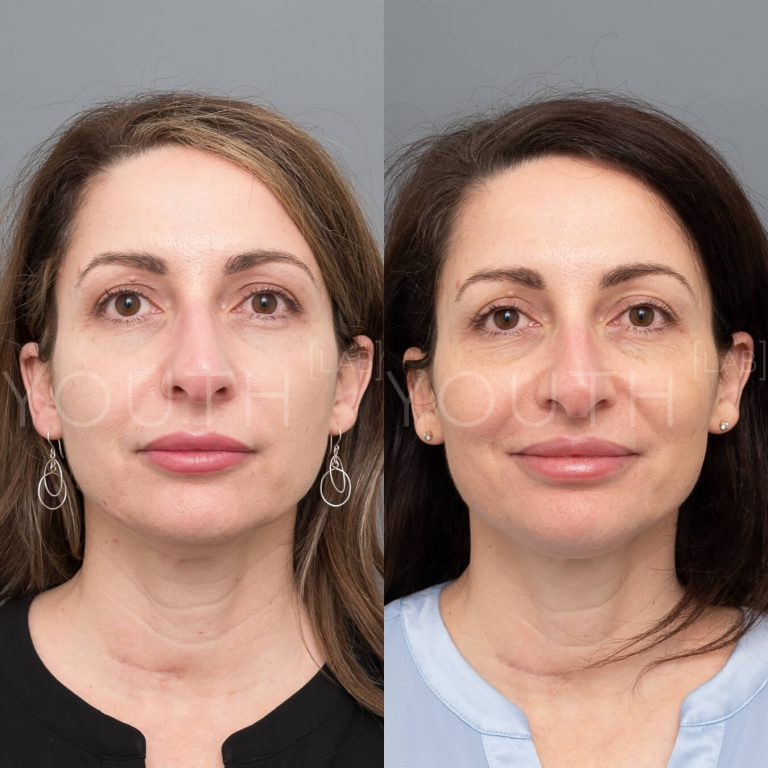 liquid face lift before and after 2