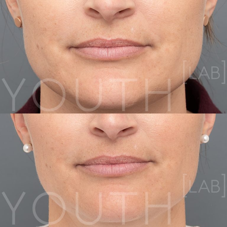 jawline slimming masseter reduction before and after 2
