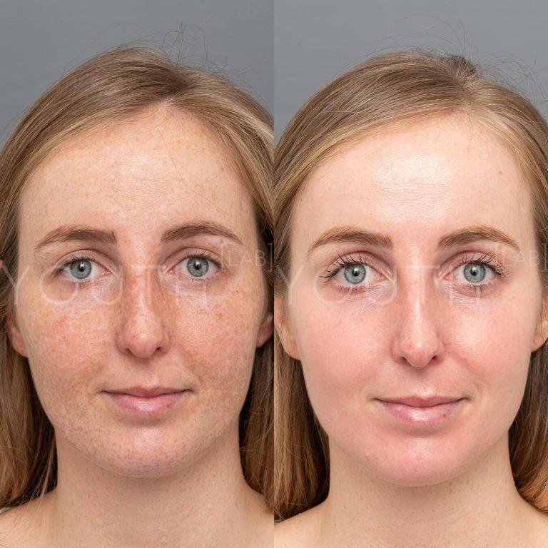 before and after Dermamelan Depigmentation peel front