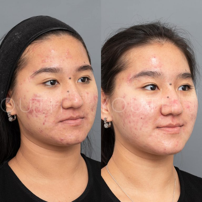 Acnelan peel by Mesoesthetic before and after