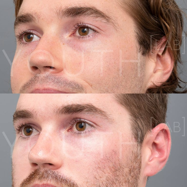 before and after of Plasma Therapy (PRP) - close up