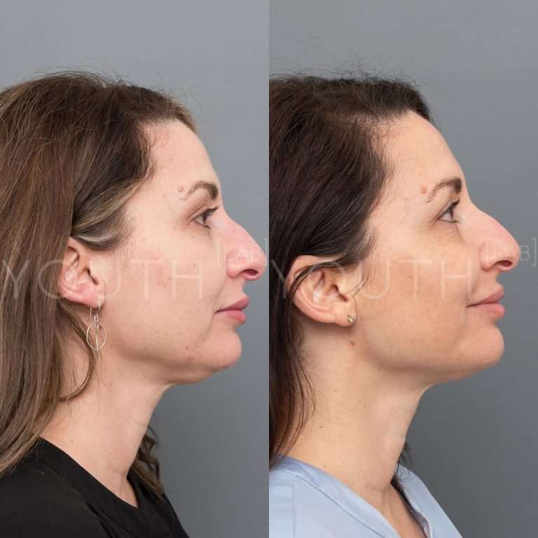 fat dissolving treatment before and after 1