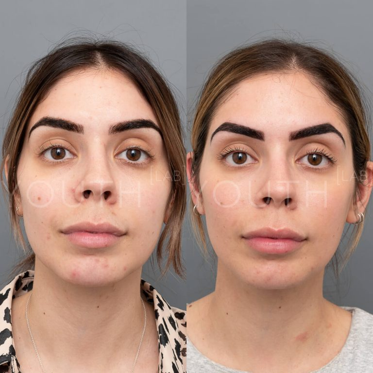 before and after hydrafacial treatment at Youth Lab