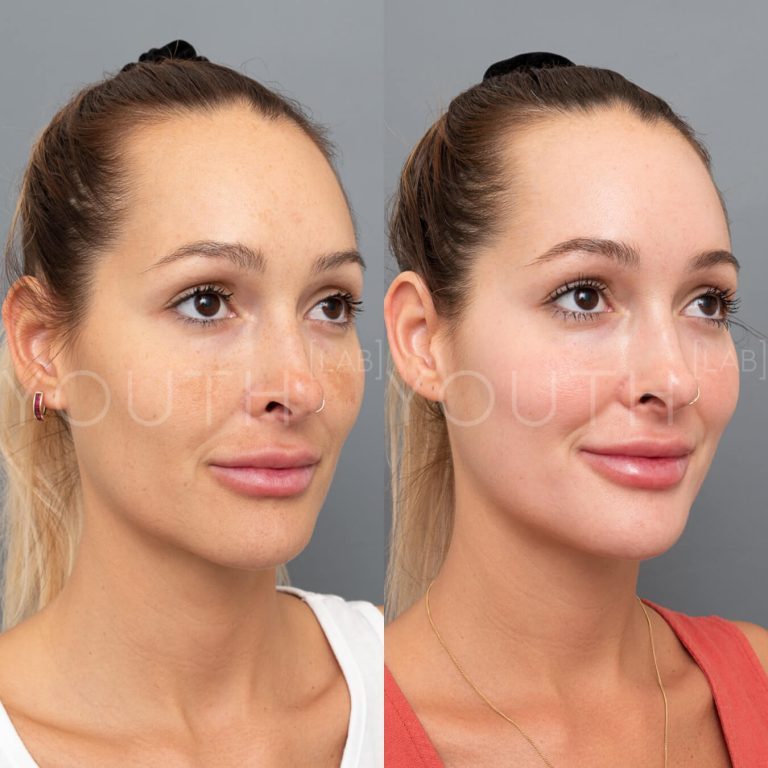 before and after Dermamelan Depigmentation peel
