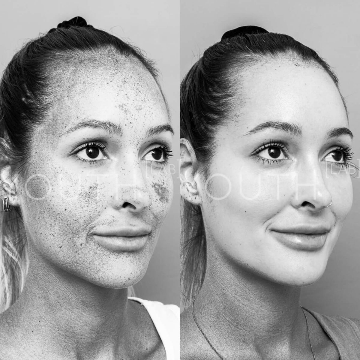before and after Dermamelan Depigmentation peel with grey filter