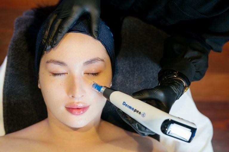 skin needling with dermapen4