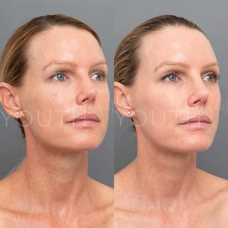 Halo - Hybrid Fractionated Laser before and after
