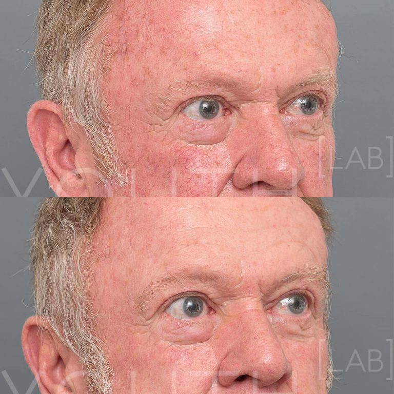 Halo - Hybrid Fractionated Laser before and after redness