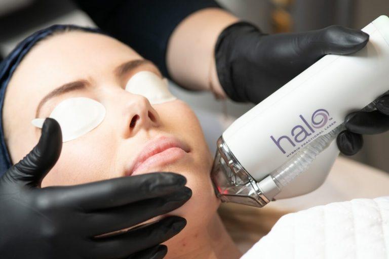 Halo - Hybrid Fractionated Laser close up